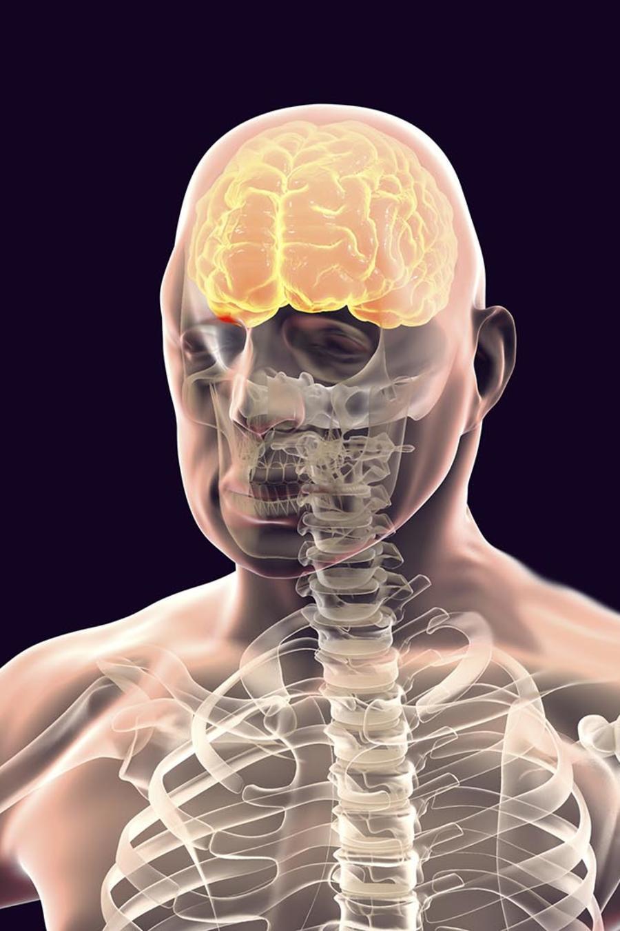 parásito cerebro