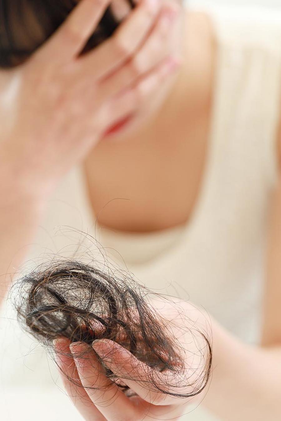 caida cabello