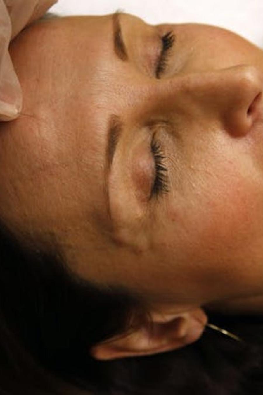 El botox es actualmente el tratamiento cosmético no quirúrgico más popular en Estados Unidos.
