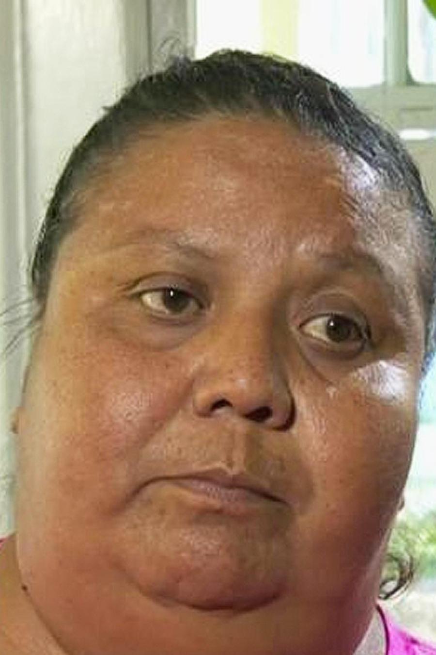mujer trasplante de rinon