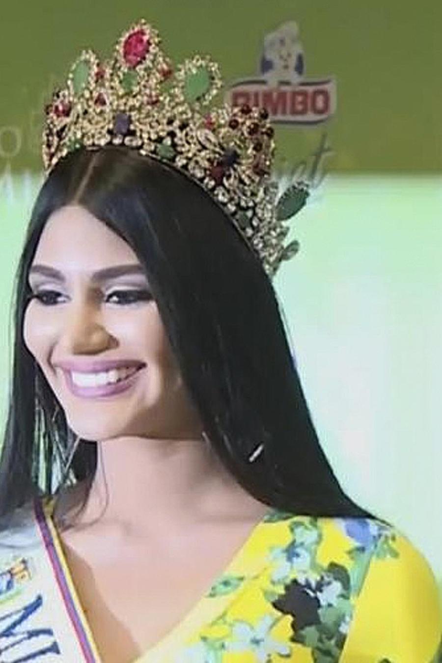 escandalo miss venezuela