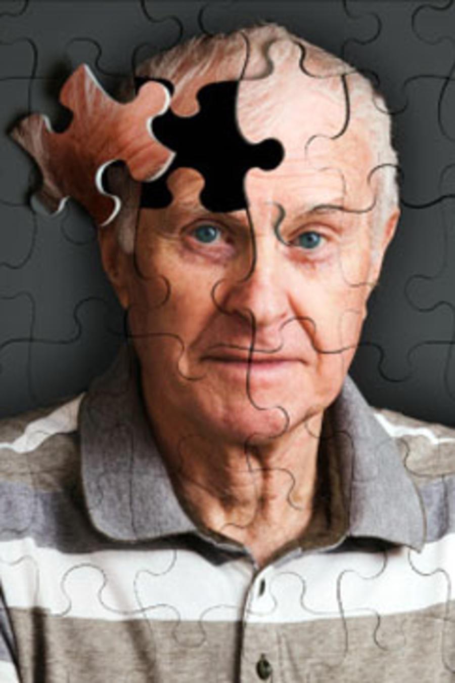 Desarrollan una técnica para diagnosticar el alzheimer