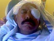 Tras operaciónno perdióel ojo,pero sí el 40% de la visión. El cantante seha recuperado y sigue cantando.