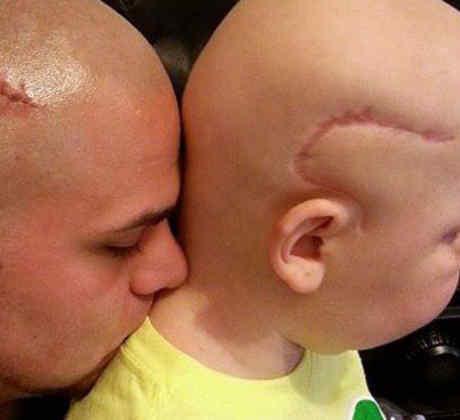 Josh Marshall se tatúa la cicatriz de su hijo enfermo de cáncer para ayudarle con su autoestima