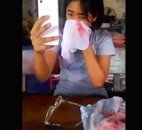 Niña de 7 años derrama sangre de sus ojos, oídos y piel (VIDEO)