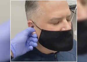 El ajuste de orejas se hace viral en TikTok