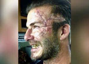 beckham rostro desfigurado